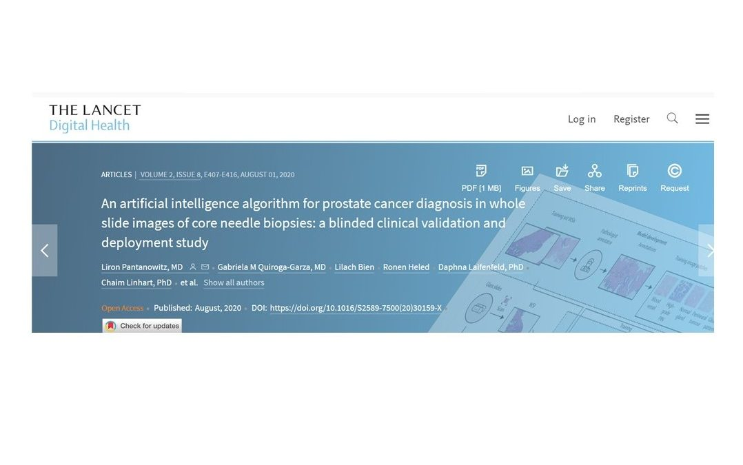 The Lancet Reports Outstanding Performance of Accelerator SME Ibex Medical Analytics' AI-based Algorithm